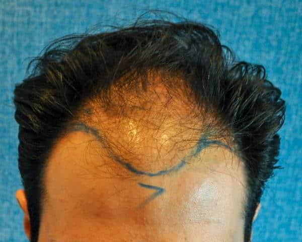 Antes y después en cirugía capilar (antes)