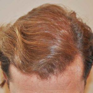hair-transplant-after-1-300x300