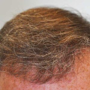 hair-transplant-after-10-300x300