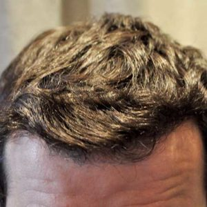 hair-transplant-after-12-300x300