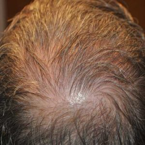 hair-transplant-after-13-300x300