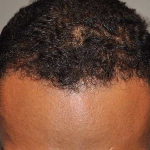 hair-transplant-after-2-300x300