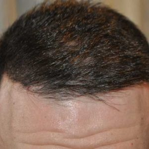 hair-transplant-after-21-300x300