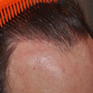 hair-transplant-after-23-300x300
