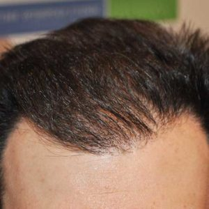 hair-transplant-after-3-300x300