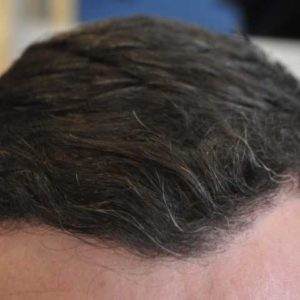 hair-transplant-after-4-300x300