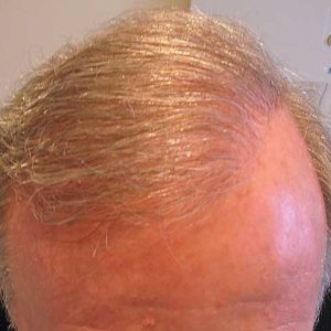 hair-transplant-after-6-300x300