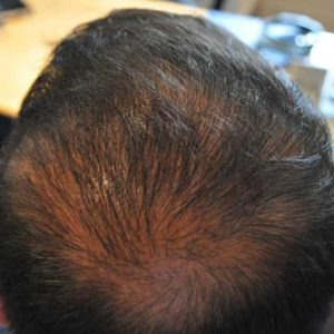 hair-transplant-after-9-300x300