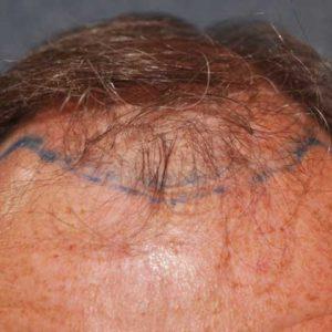 hair-transplant-before-10-300x300