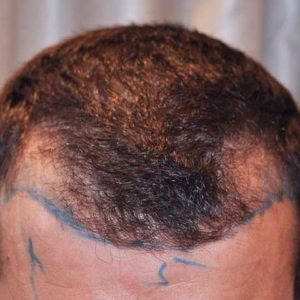 hair-transplant-before-12-300x300
