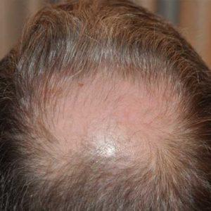 hair-transplant-before-13-300x300