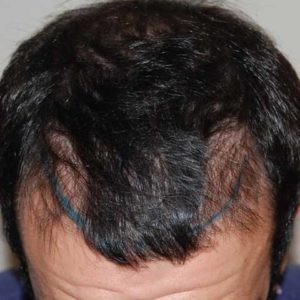 hair-transplant-before-21-300x300