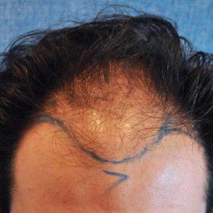 hair-transplant-before-3-300x300