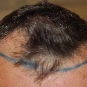 hair-transplant-before-4-300x300