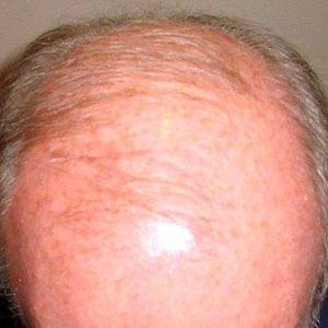 hair-transplant-before-6-300x300