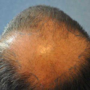 hair-transplant-before-9-300x300