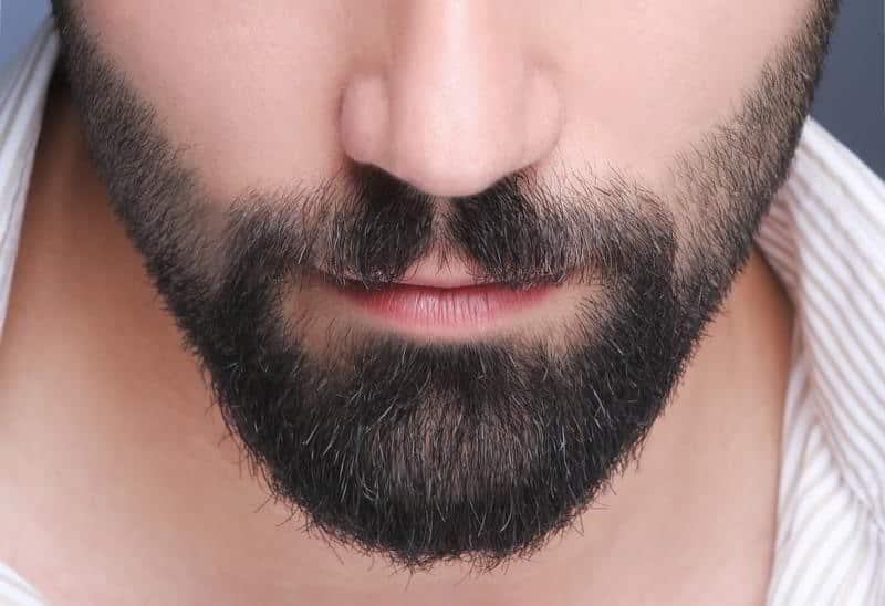Implante de Barba - Otros tratamientos