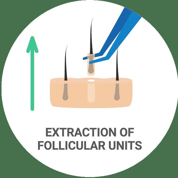 Extracción de cabello (FUE)