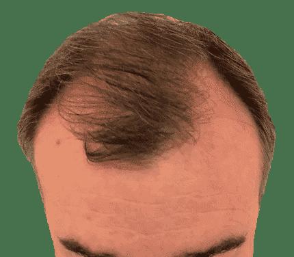 Implante capilar a través de técnica FUE